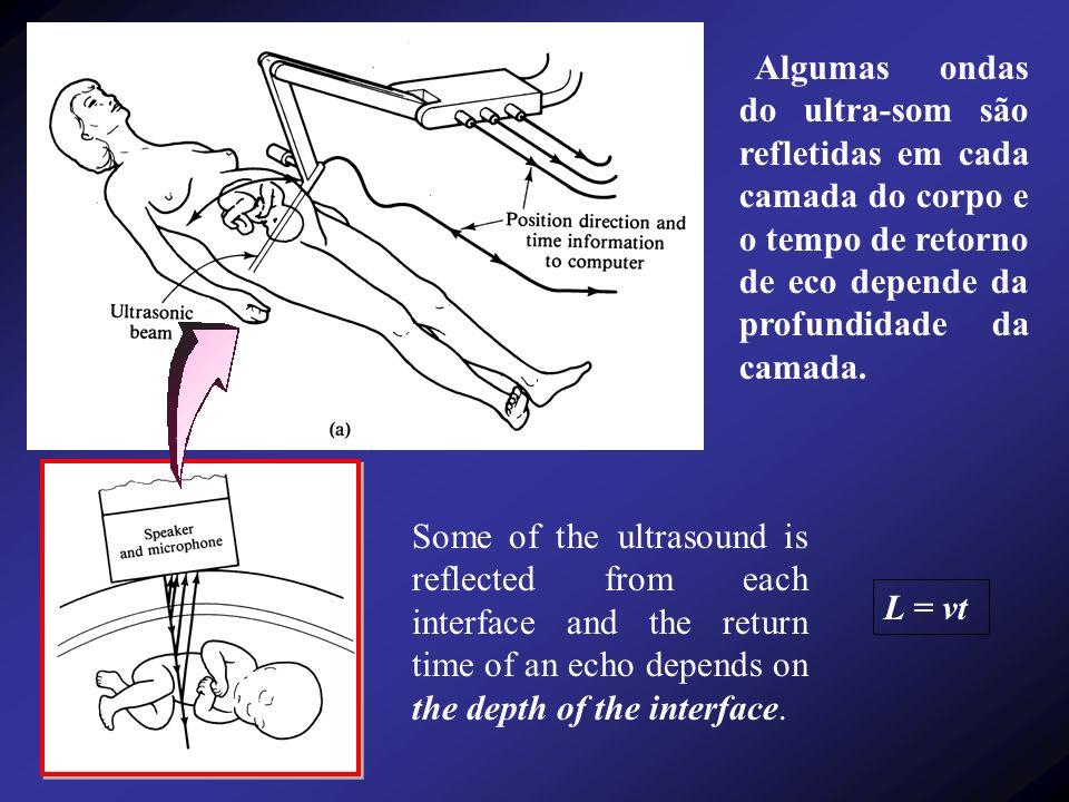 Algumas ondas do ultra-som são refletidas em cada camada do corpo e o tempo de retorno de eco depende da profundidade da camada.
