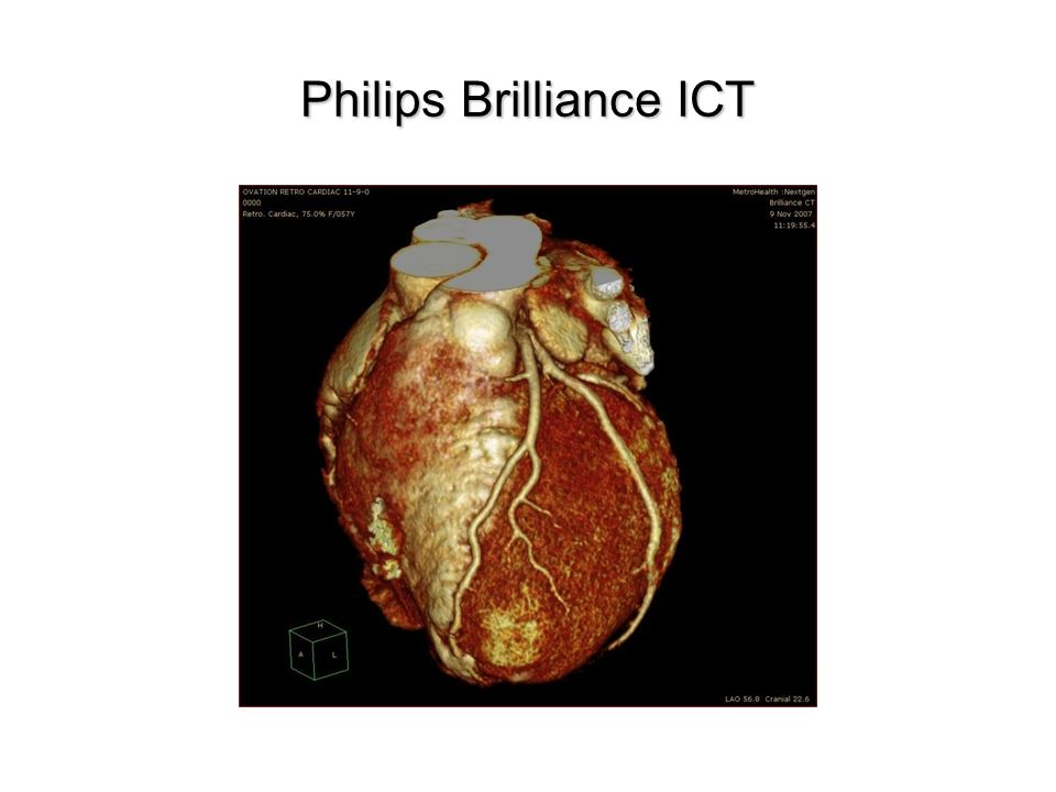 Philips Brilliance ICT