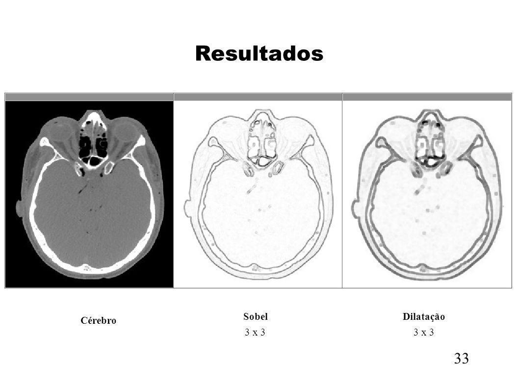 Resultados Sobel 3 x 3 Dilatação 3 x 3 Cérebro 33