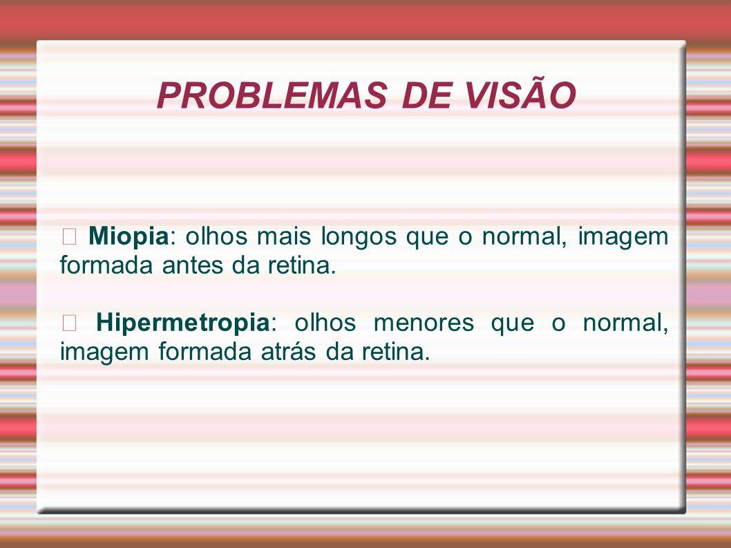 PROBLEMAS DE VISÃOꙮ Miopia: olhos mais longos que o normal, imagem formada antes da retina.
