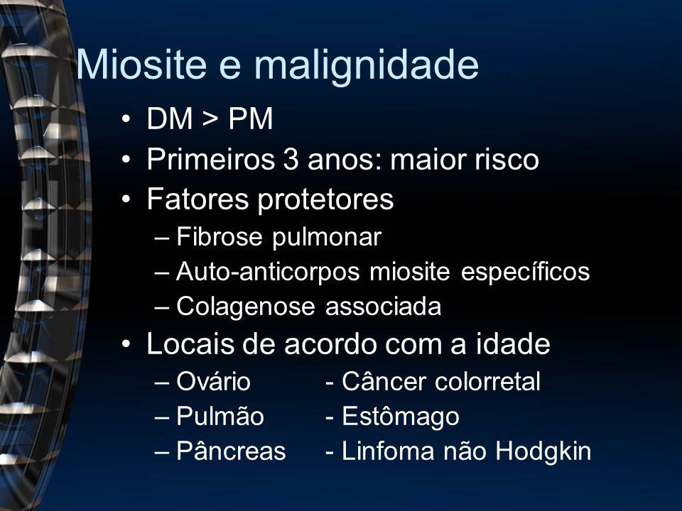 Miosite e malignidade DM > PM Primeiros 3 anos: maior risco
