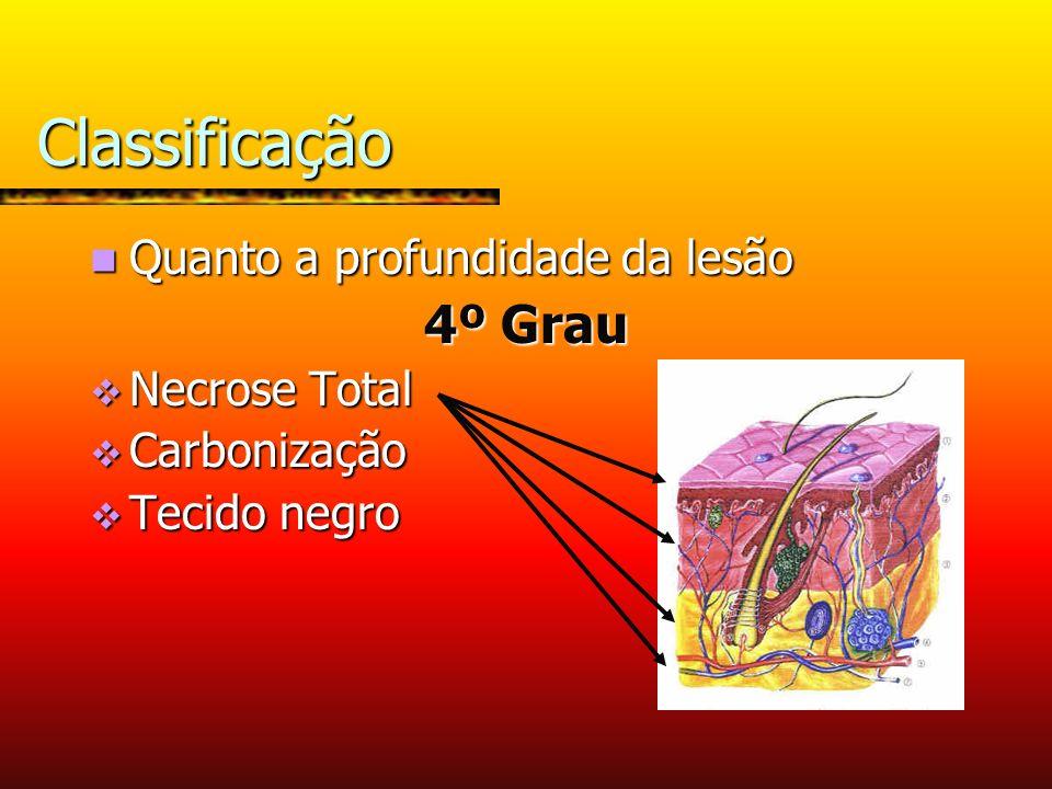 Classificação 4º Grau Quanto a profundidade da lesão Necrose Total