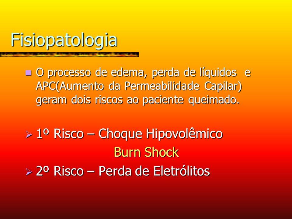 Fisiopatologia 1º Risco – Choque Hipovolêmico Burn Shock