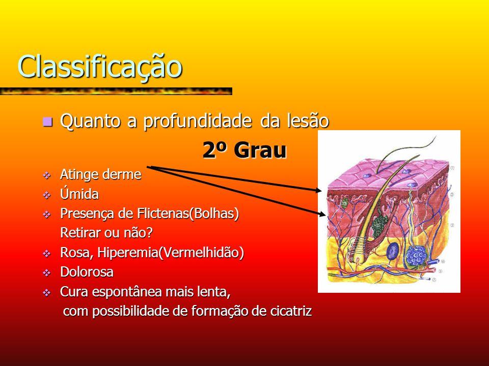 Classificação 2º Grau Quanto a profundidade da lesão Atinge derme
