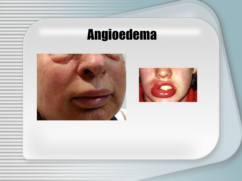 Angioedema