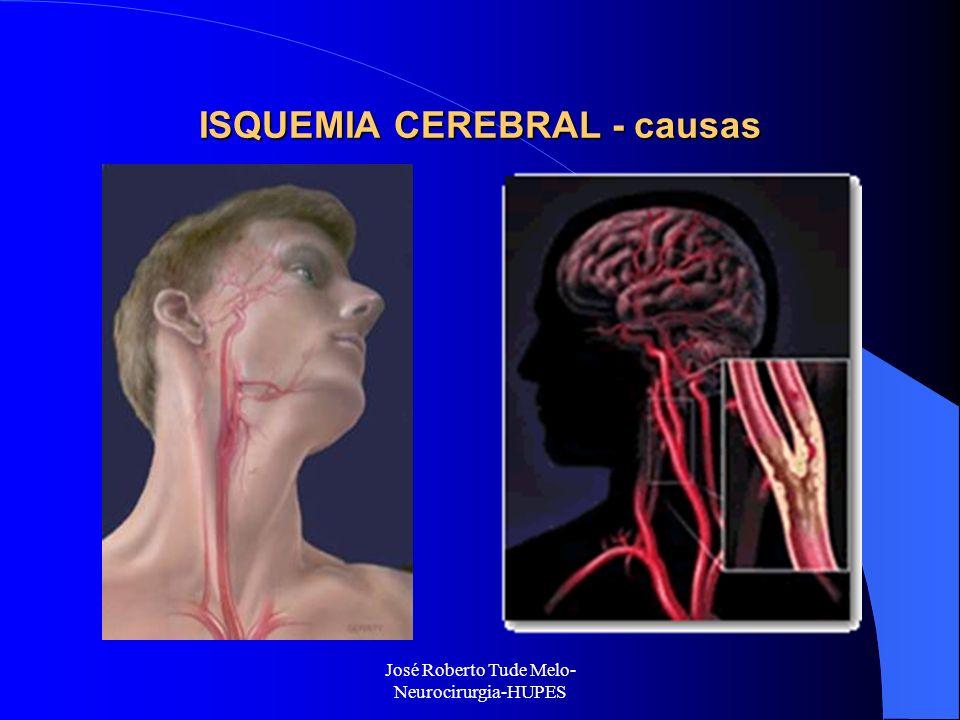 ISQUEMIA CEREBRAL - causas