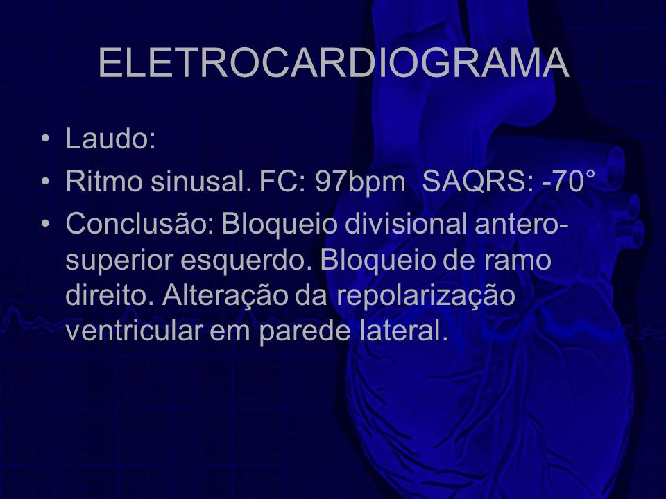 ELETROCARDIOGRAMA Laudo: Ritmo sinusal. FC: 97bpm SAQRS: -70°