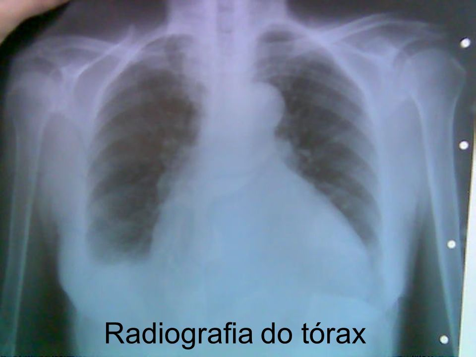 Radiografia do tórax