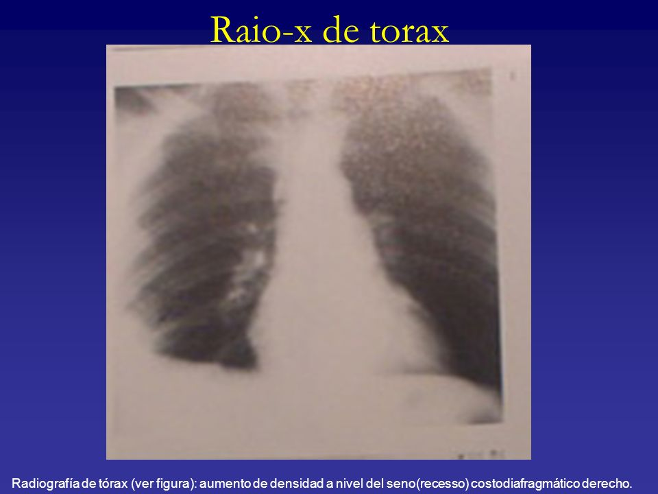 Raio-x de torax Radiografía de tórax (ver figura): aumento de densidad a nivel del seno(recesso) costodiafragmático derecho.
