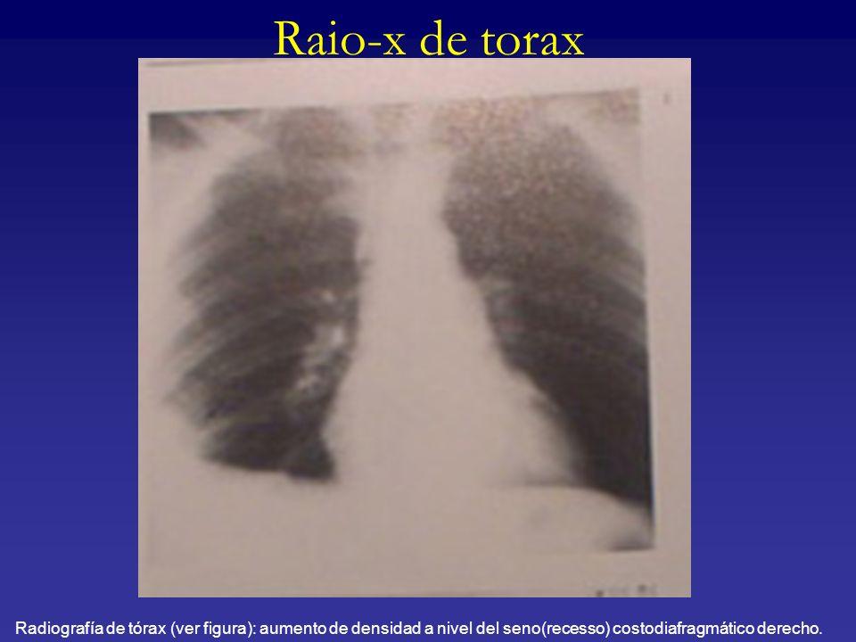 Raio-x de toraxRadiografía de tórax (ver figura): aumento de densidad a nivel del seno(recesso) costodiafragmático derecho.