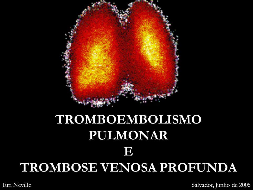 TROMBOEMBOLISMO PULMONAR E TROMBOSE VENOSA PROFUNDA
