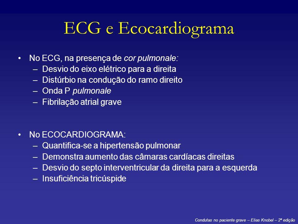 ECG e Ecocardiograma No ECG, na presença de cor pulmonale: