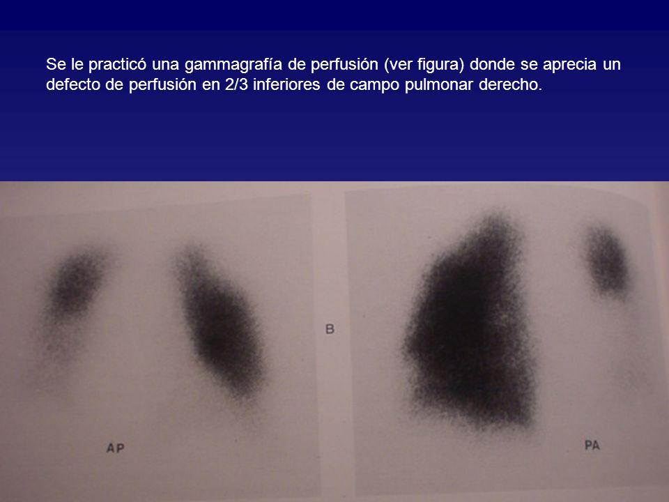 Se le practicó una gammagrafía de perfusión (ver figura) donde se aprecia un defecto de perfusión en 2/3 inferiores de campo pulmonar derecho.