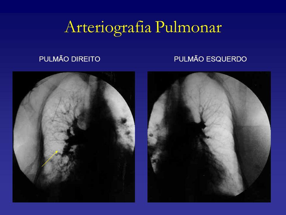 Arteriografia Pulmonar