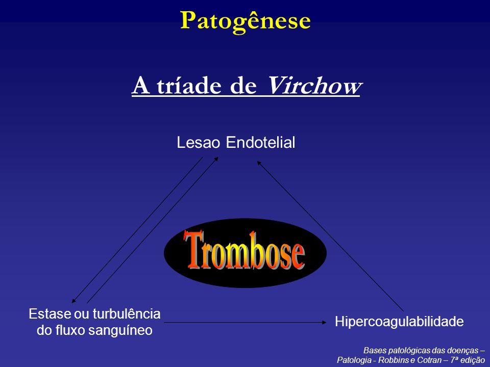 Patogênese A tríade de Virchow
