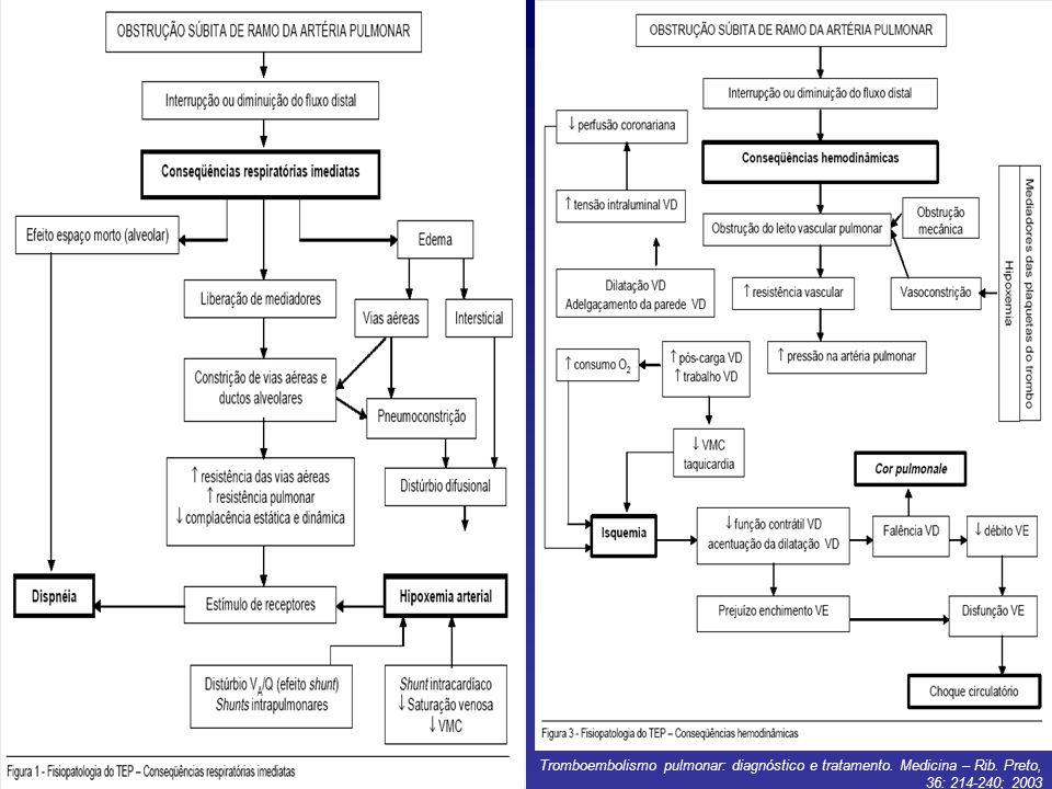 Tromboembolismo pulmonar: diagnóstico e tratamento. Medicina – Rib