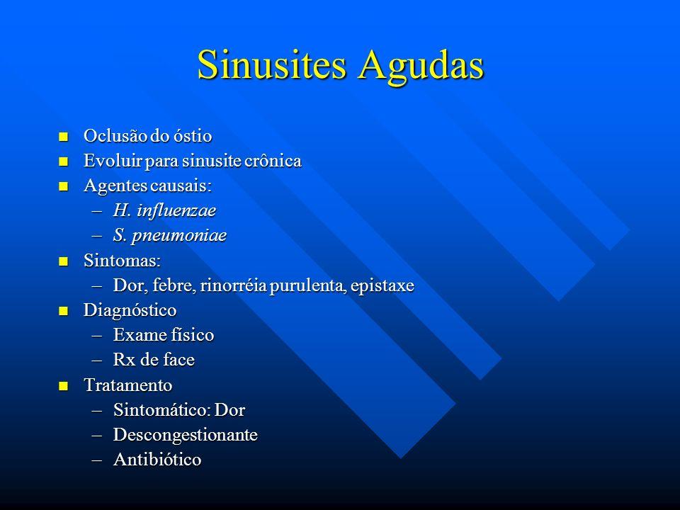 Sinusites Agudas Oclusão do óstio Evoluir para sinusite crônica