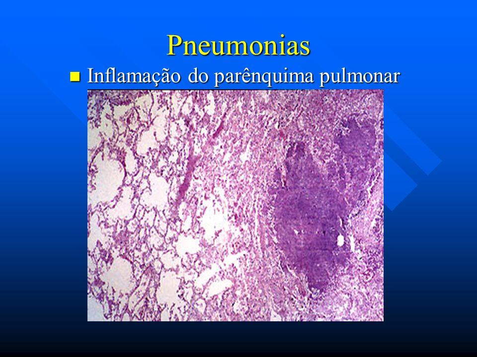 Inflamação do parênquima pulmonar