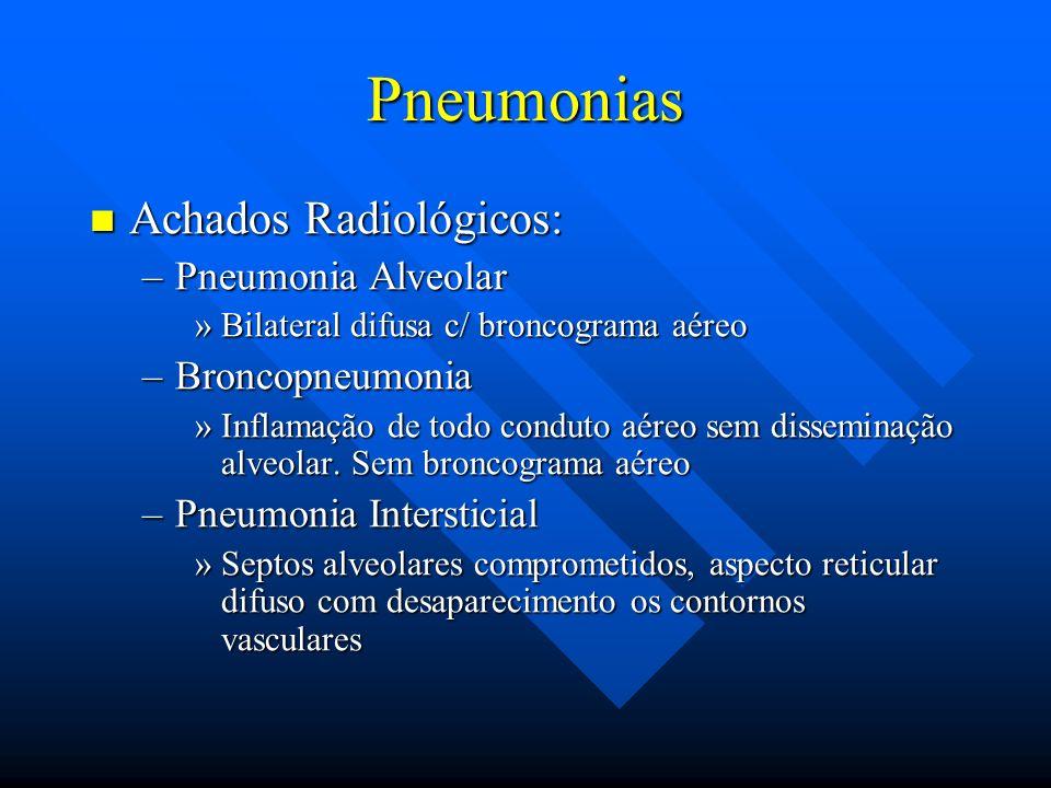 Pneumonias Achados Radiológicos: Pneumonia Alveolar Broncopneumonia