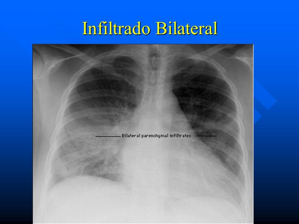 Infiltrado Bilateral