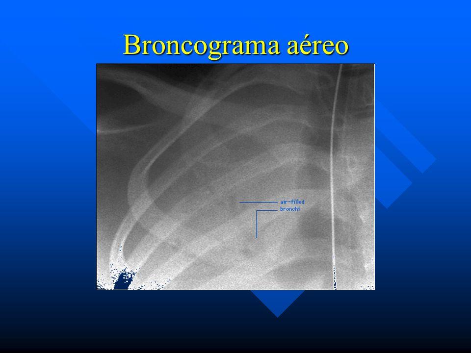 Broncograma aéreo
