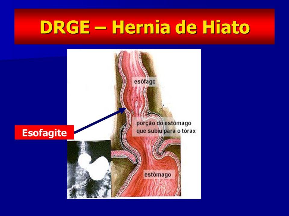 DRGE – Hernia de Hiato Esofagite