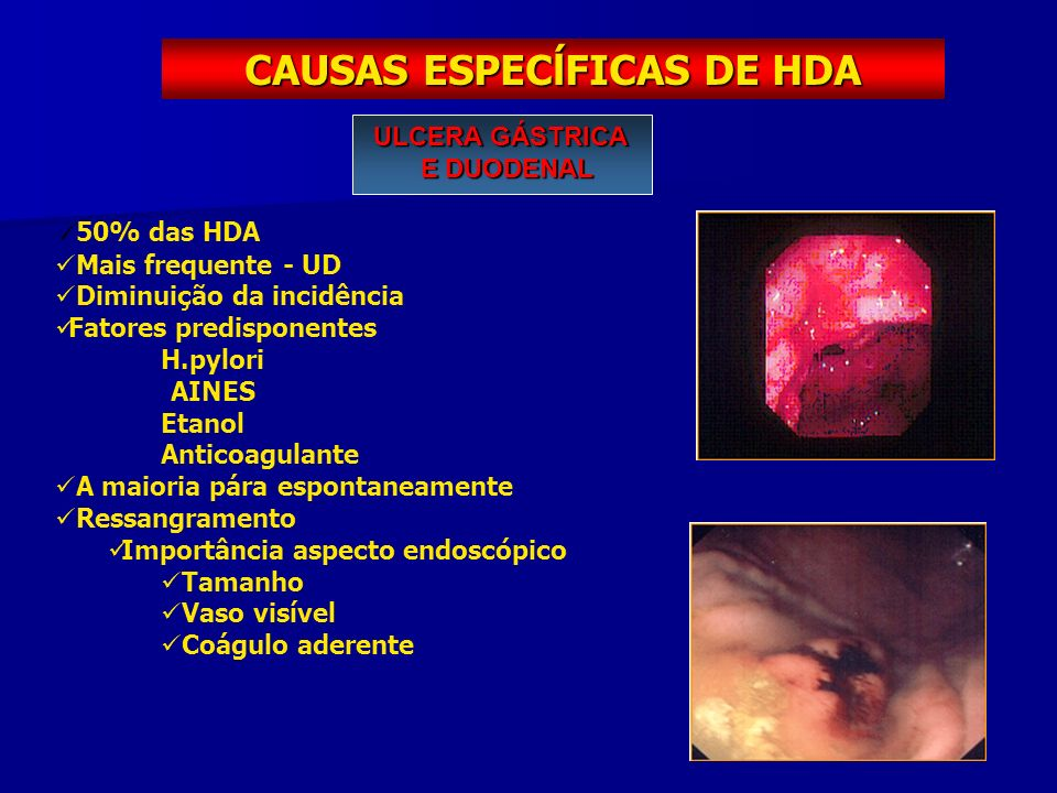 CAUSAS ESPECĺFICAS DE HDA