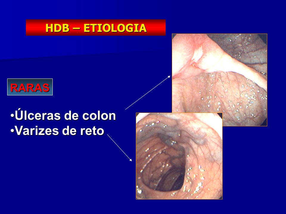 HDB – ETIOLOGIA RARAS Úlceras de colon Varizes de reto