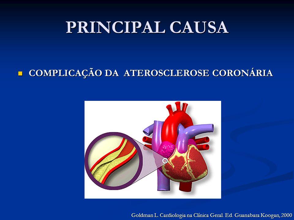 PRINCIPAL CAUSA COMPLICAÇÃO DA ATEROSCLEROSE CORONÁRIA