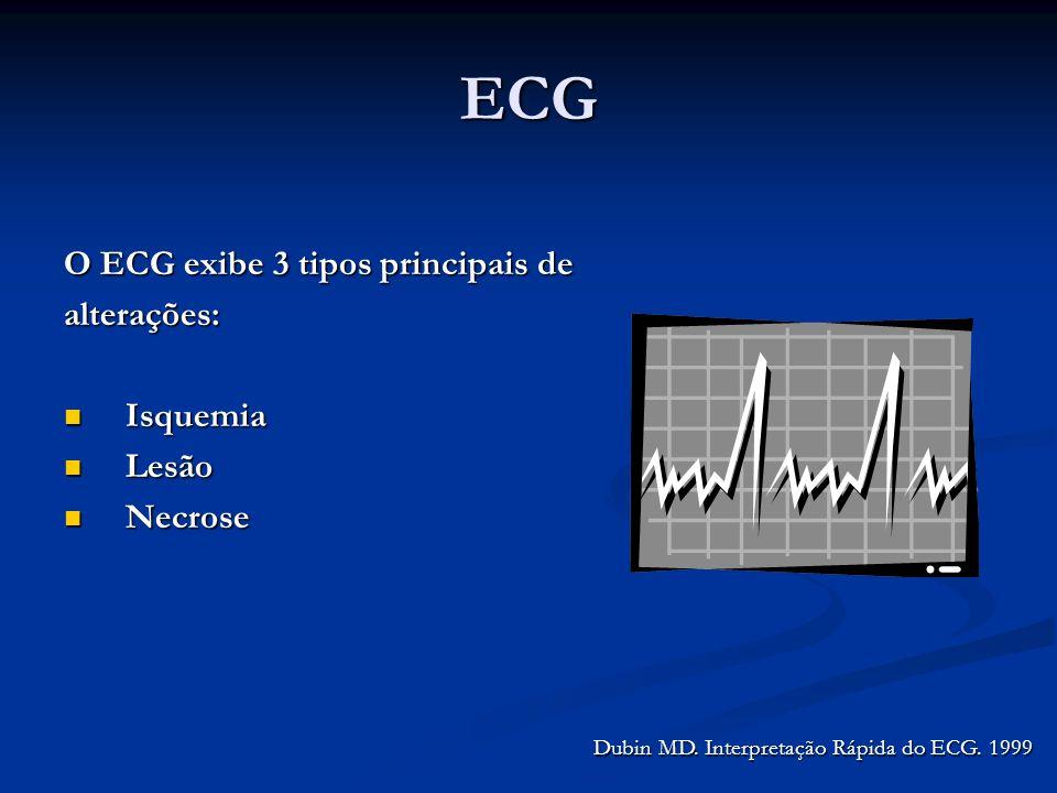 ECG O ECG exibe 3 tipos principais de alterações: Isquemia Lesão
