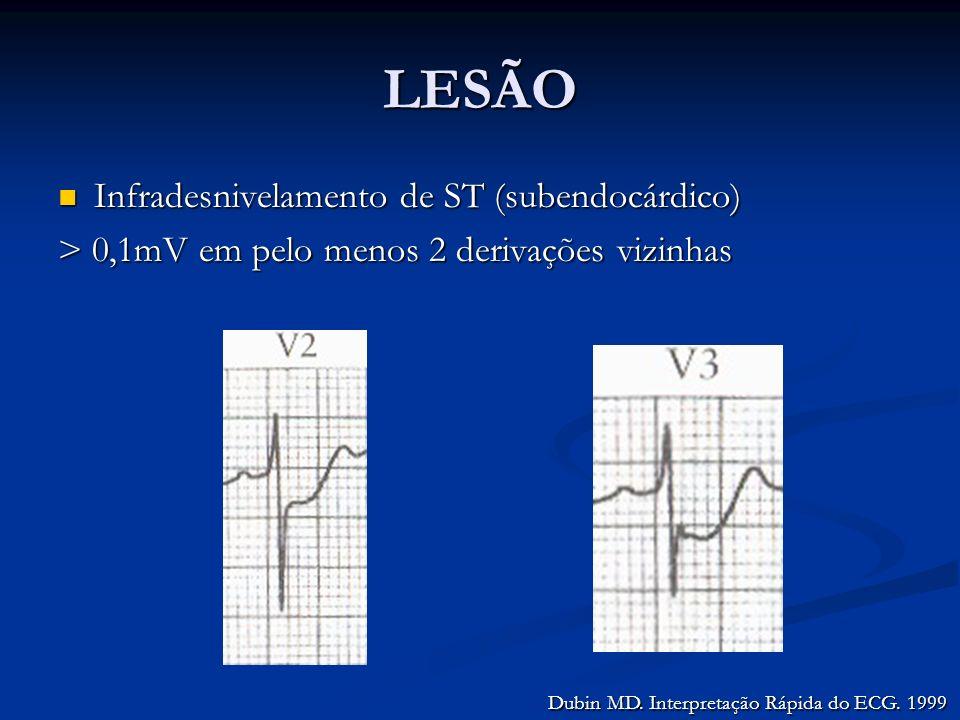 LESÃO Infradesnivelamento de ST (subendocárdico)