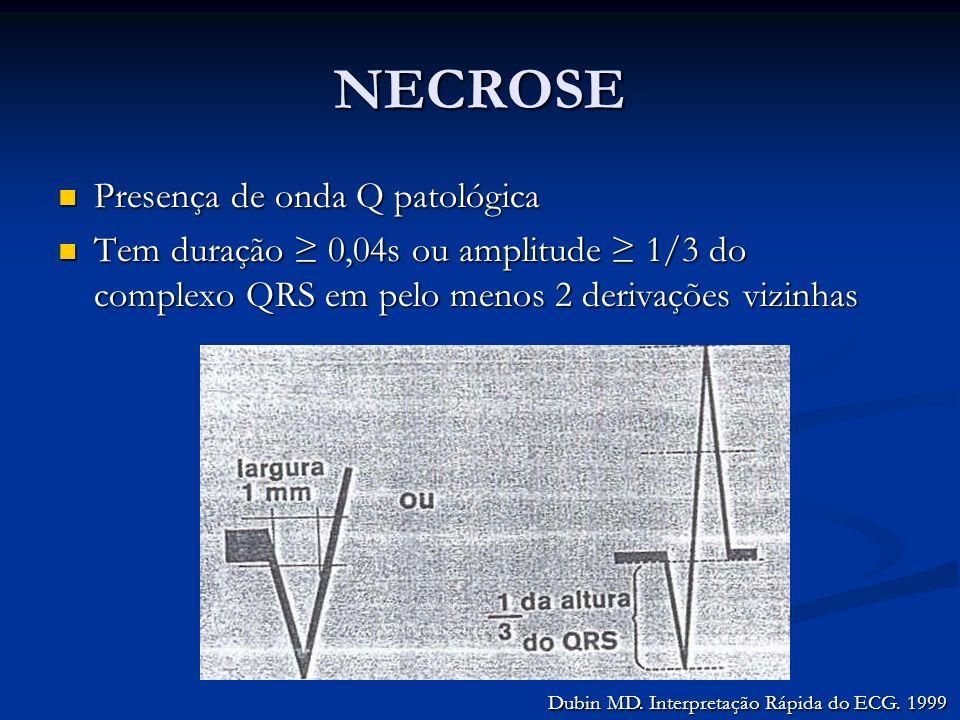 NECROSE Presença de onda Q patológica