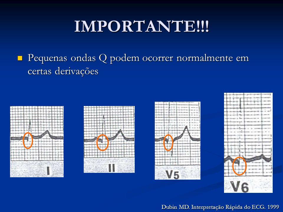IMPORTANTE!!. Pequenas ondas Q podem ocorrer normalmente em certas derivações.