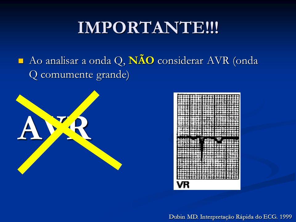IMPORTANTE!!. Ao analisar a onda Q, NÃO considerar AVR (onda Q comumente grande) AVR.