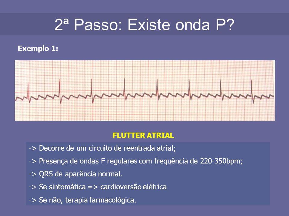 2ª Passo: Existe onda P Exemplo 1: FLUTTER ATRIAL