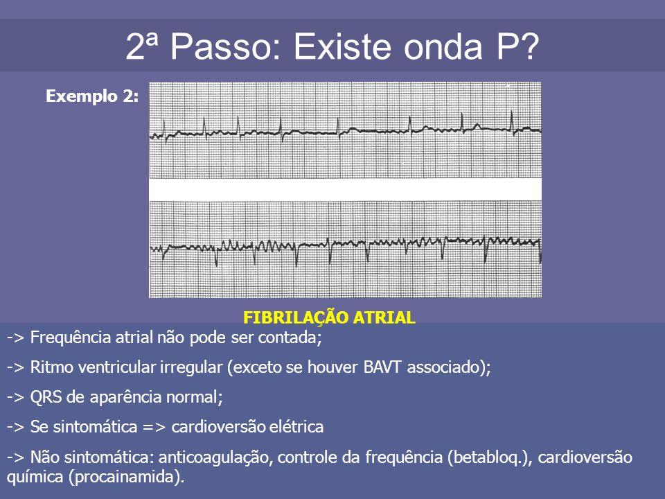 2ª Passo: Existe onda P Exemplo 2: FIBRILAÇÃO ATRIAL