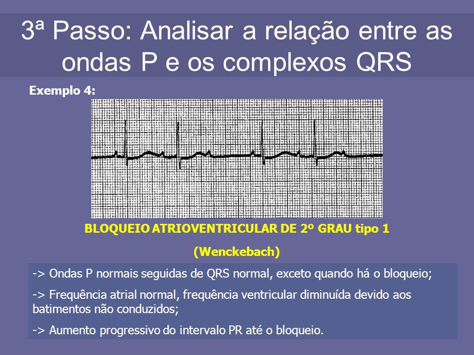 3ª Passo: Analisar a relação entre as ondas P e os complexos QRS