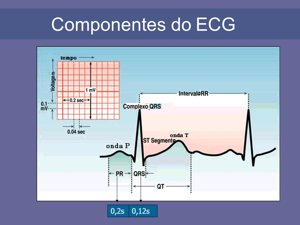 Componentes do ECG 0,2s 0,12s