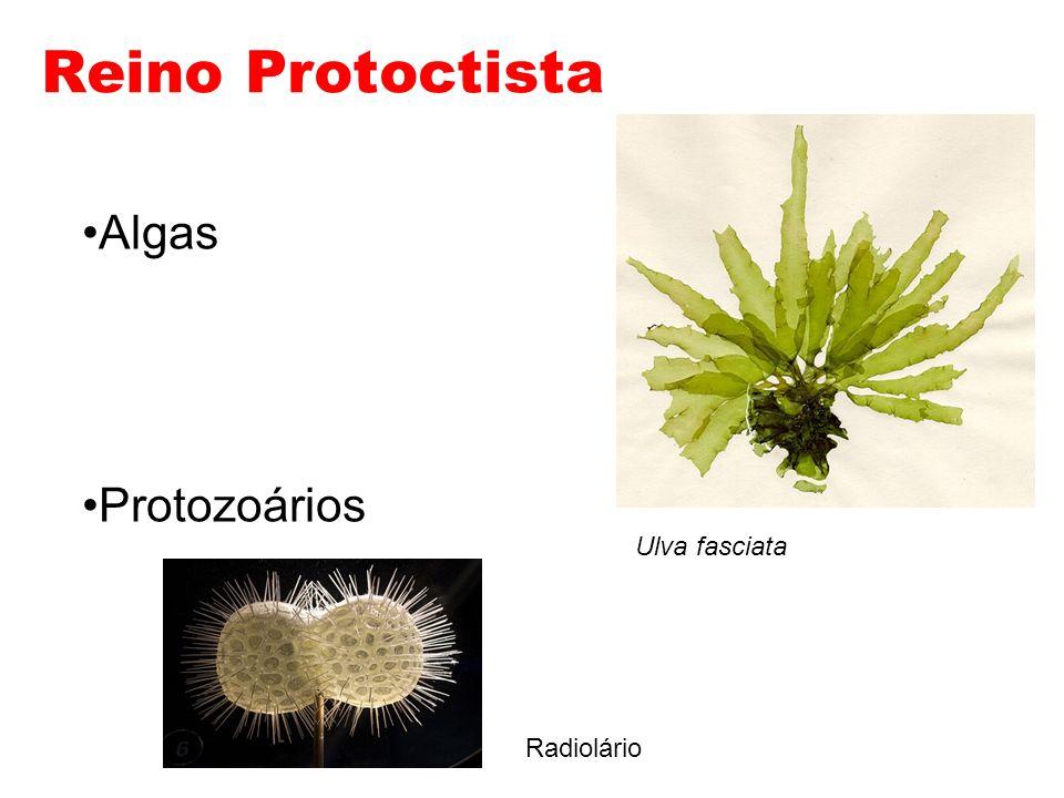 Reino Protoctista Algas Protozoários Ulva fasciata Radiolário