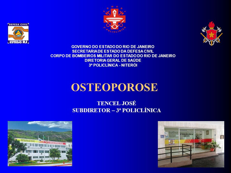 OSTEOPOROSE TENCEL JOSÉ SUBDIRETOR – 3ª POLICLÍNICA