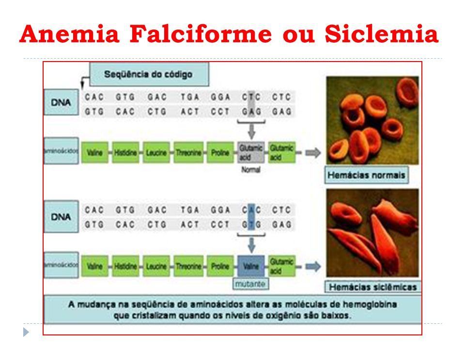 Anemia Falciforme ou Siclemia