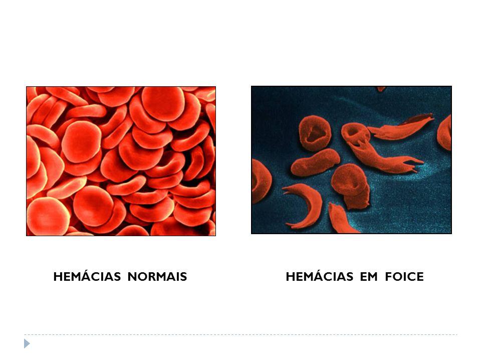 HEMÁCIAS NORMAIS HEMÁCIAS EM FOICE