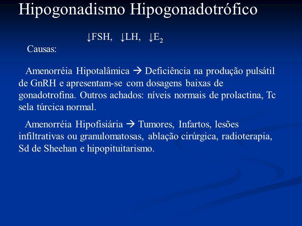 Hipogonadismo Hipogonadotrófico