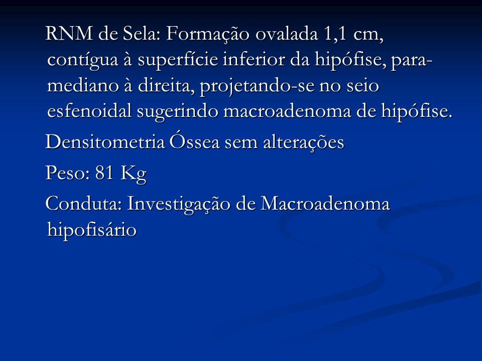 RNM de Sela: Formação ovalada 1,1 cm, contígua à superfície inferior da hipófise, para- mediano à direita, projetando-se no seio esfenoidal sugerindo macroadenoma de hipófise.