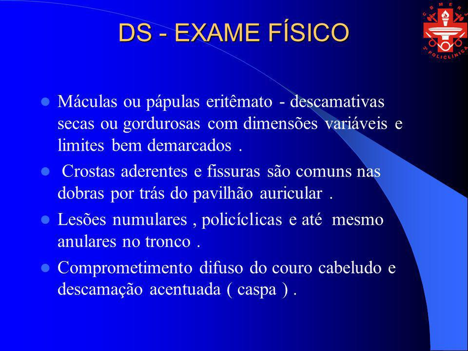 DS - EXAME FÍSICO Máculas ou pápulas eritêmato - descamativas secas ou gordurosas com dimensões variáveis e limites bem demarcados .