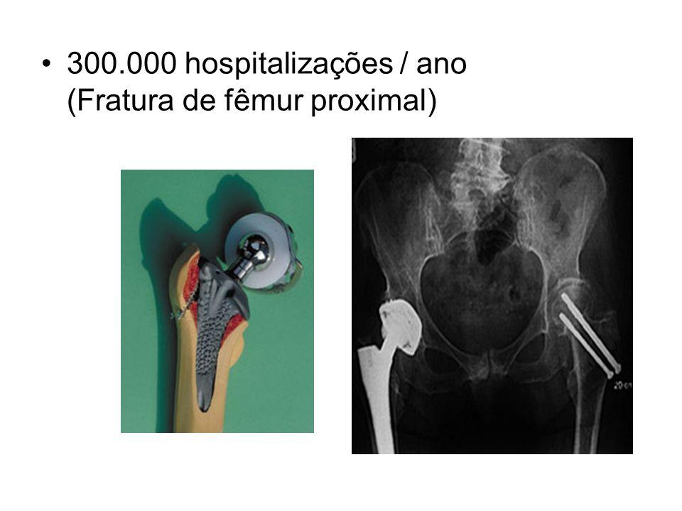 300.000 hospitalizações / ano (Fratura de fêmur proximal)