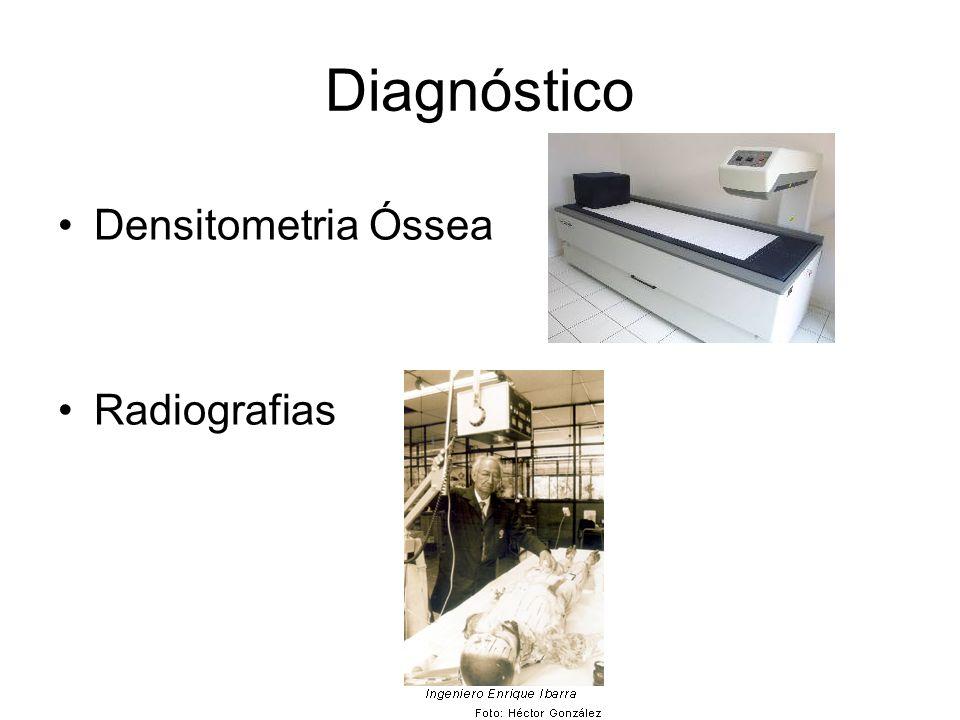 Diagnóstico Densitometria Óssea Radiografias