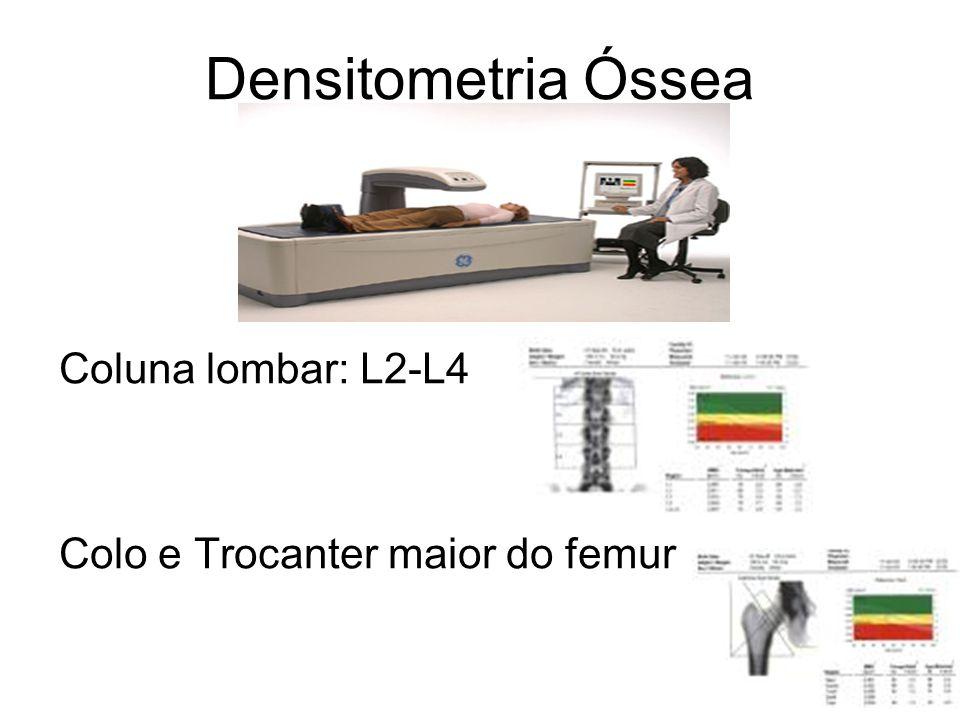 Densitometria Óssea Coluna lombar: L2-L4