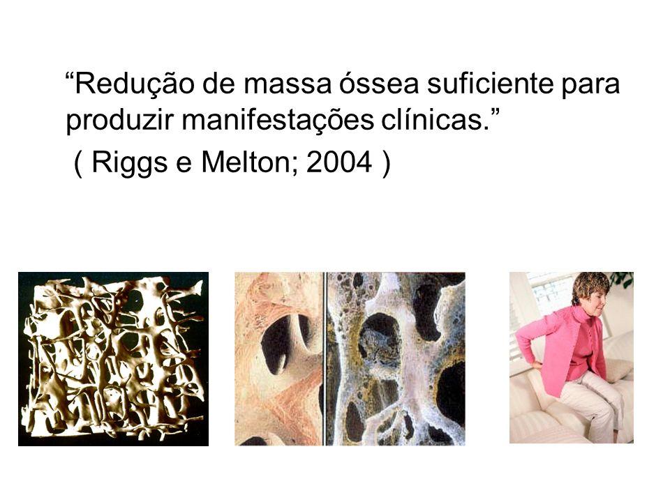 Redução de massa óssea suficiente para produzir manifestações clínicas.