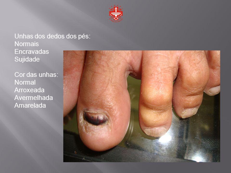 Unhas dos dedos dos pés:
